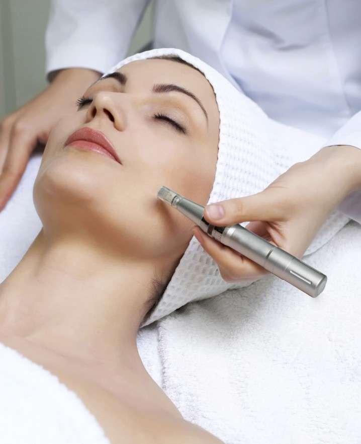 Skinpen ansigtsbehandling er en effektiv behandling for hudproblemer