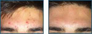 Før/efter acne