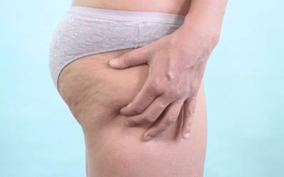 Cellulite Behandlinger! OKTOBER TILBUD